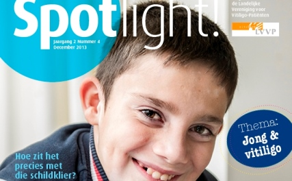 Coverdeel Spotlight4