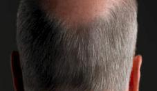 Wondermiddel tegen grijs haar en vitiligo?