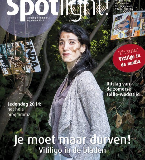 Spotlight! nr. 3 over vitiligo in de media