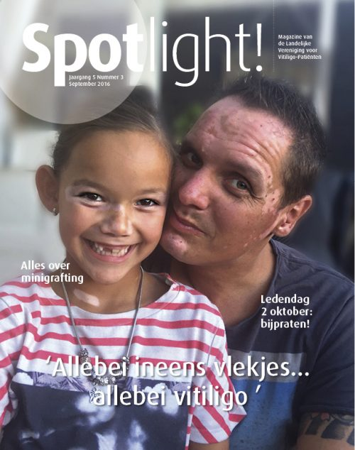 Spotlight! nr 3 (2016): alles over minigrafting