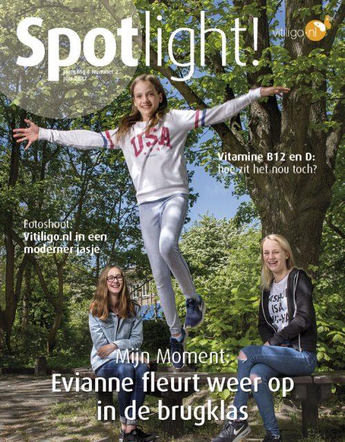 Spotlight! nr 2 (2017): Vitiligo en vitamine D en B12