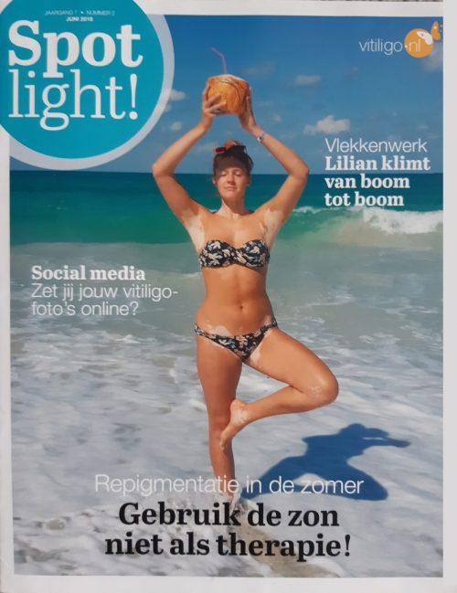 Spotlight! nr 2 (2018) over repigmentatie
