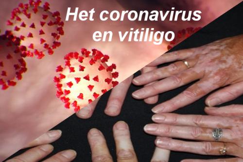 Coronavirus en vitiligo