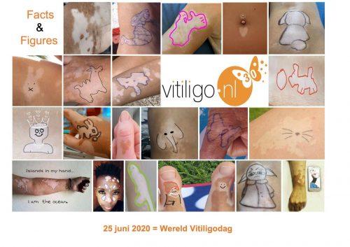 25 juni Wereld Vitiligo Dag
