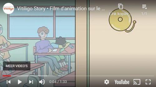 Vitiligo Story